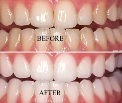 How To Whiten Teeth Naturally With Baking Soda Hydrogen Peroxide